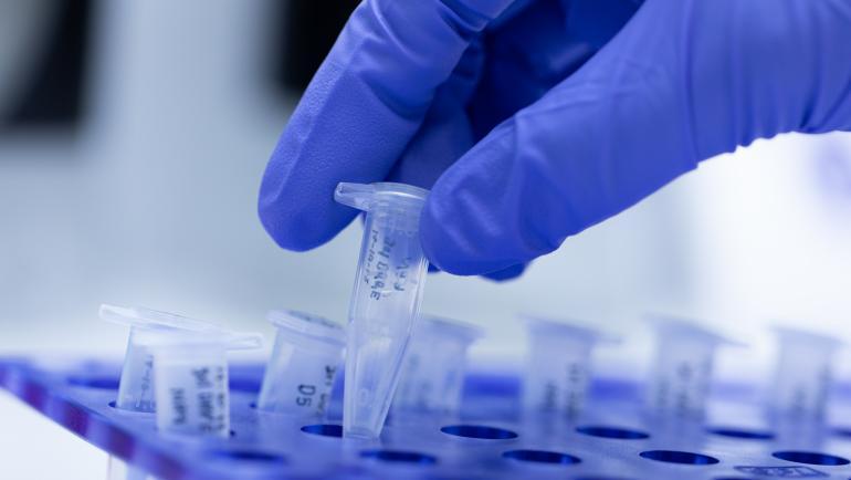 Хиляди фалшиви позитивни проби за коронавирус