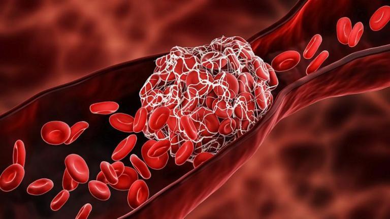 Коронавирусът води до тромбози